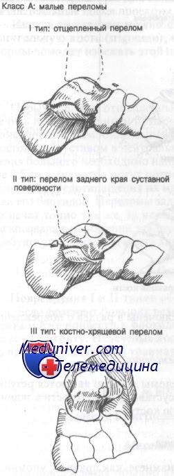 Малые переломы таранной кости. Диагностика и лечение
