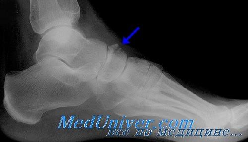 перелом ладьевидной кости стопы