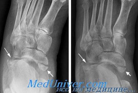 Перелом кубовидной или клиновидных костей. Диагностика и лечение