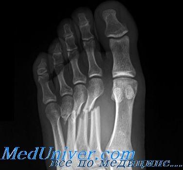 Переломы плюсневых костей. Диагностика и лечение