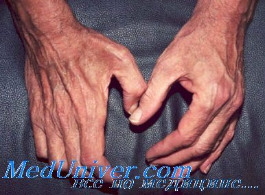 Болит мышца разгибатель пальцев thumbnail