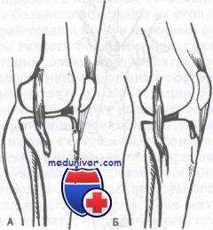 травма мениска коленного сустава