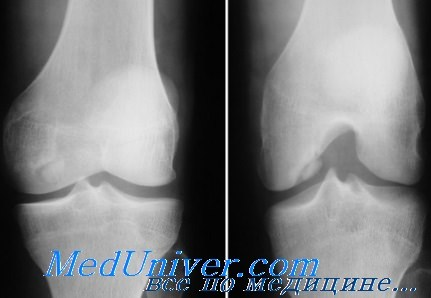 Рассекающий остеохондрит коленного сустава - болезнь Кенига