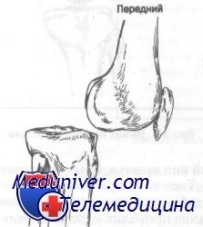 передний вывих коленного сустава