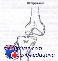 Вывих коленного сустава диагностика thumbnail