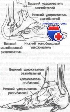 Изображение - Связки и сухожилия голеностопного сустава 436