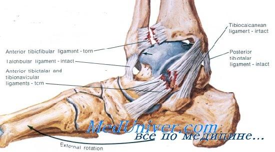 Растяжение связок голеностопного сустава - диагностика, лечение