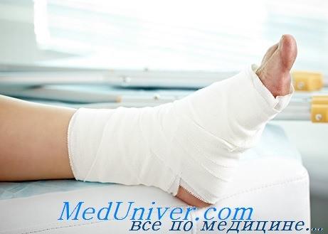 Лечение растяжений голеностопного сустава. Осложнения