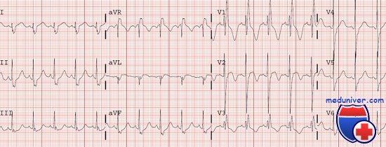 Клиника, диагностика тупой травмы сердца. ЭКГ