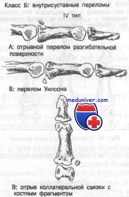 Внутрисуставные переломы средней фаланги кисти. Диагностика и лечение