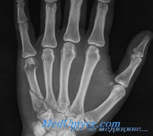 Переломы основания II-V пястных костей. Диагностика и лечение