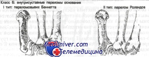 перелом первой пястной кости