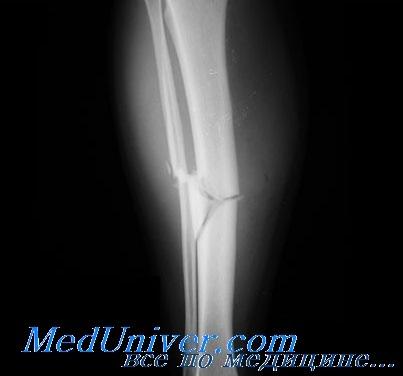 перелом диафиза большеберцовой кости