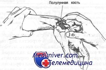 Переломы полулунной кости запястья - диагностика, лечение