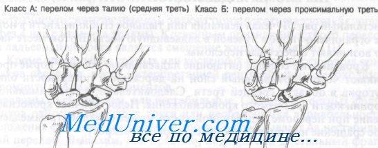 Переломы ладьевидной кости запястья - диагностика, лечение
