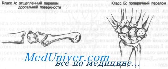 Перелом трехгранной кости. Диагностика и лечение