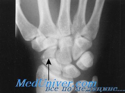 Перелом головчатой кости. Диагностика и лечение