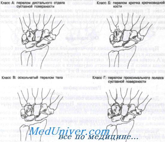Перелом крючковидной кости. Диагностика и лечение