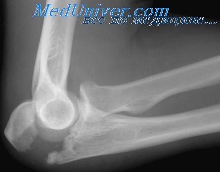 Лечение перелома локтевого отростка предплечья. Сроки ...