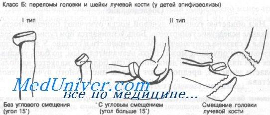 перелом головки и шейки лучевой кости