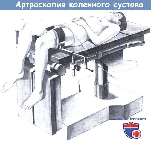 Положение пациента при артроскопии коленного сустава