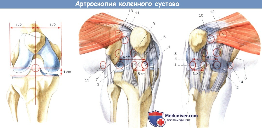 Доступ при артроскопии коленного сустава