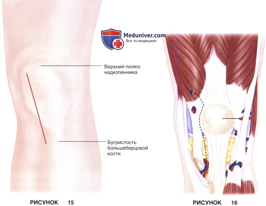 Техника доступа для тотального эндопротезирования коленного сустава