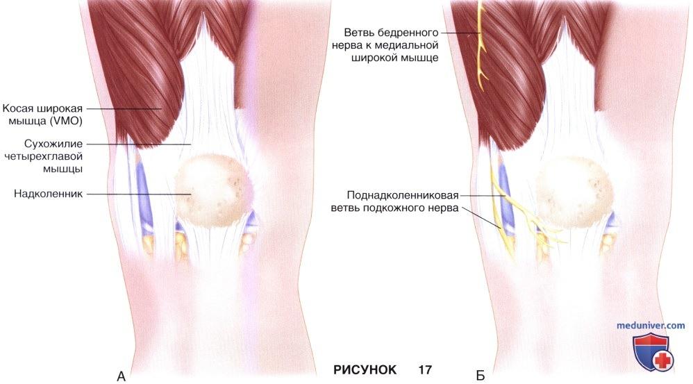 Доступы на коленного сустава thumbnail