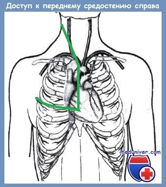 доступ к подключичной артерии через стернотомию