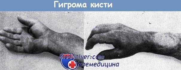Гигрома (хронический тендовагинит) - диагностика, лечение