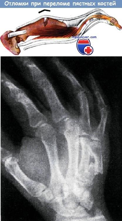 Отломки при переломе пястных костей