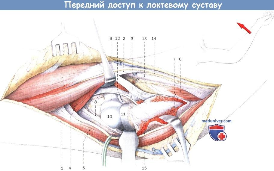Передний доступ к локтевому суставу тендинит и остеоартроз коленного сустава