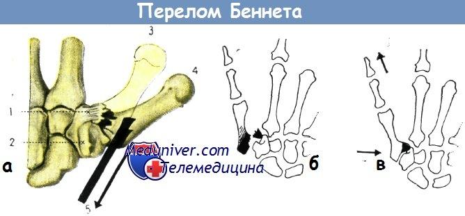 Перелом пястной кости репозиция thumbnail