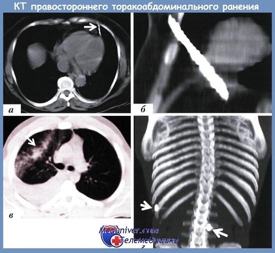 КТ торакоабдоминального ранения