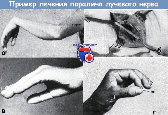 Пример лечения паралича лучевого нерва
