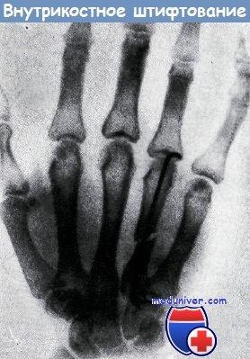 Внутрикостное штифтование пястной кости