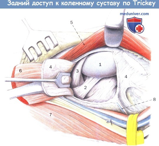 Техника заднего доступа к коленному суставу по Trickey