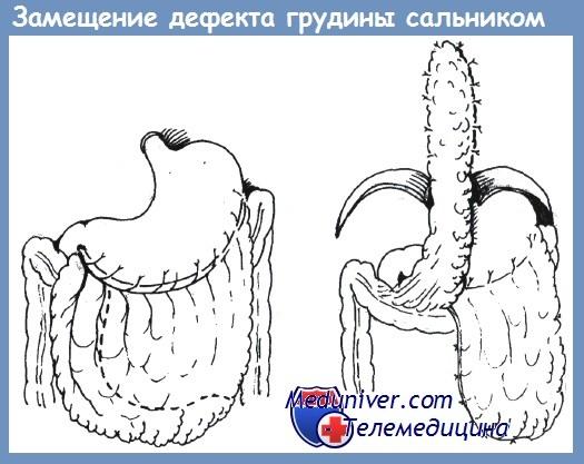 Хондрит и остеомиелит ребер и грудины после травмы груди - причины ...
